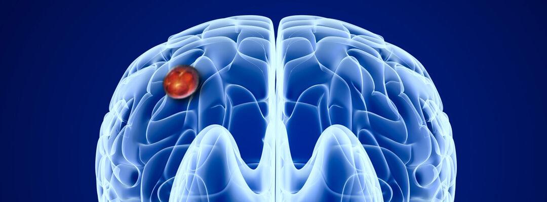 NEO 212 Enhances Temozolomide's Ability To Increase Radiosensitivity And Cytotoxicity In Glioblastoma Tumors