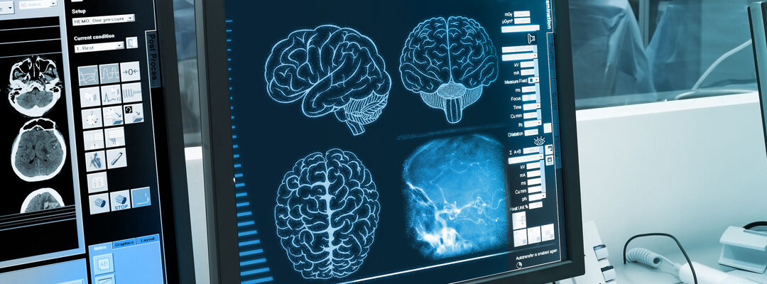 Improving Therapeutic Efficacy For Brain-Based Cancers Using NEO 100